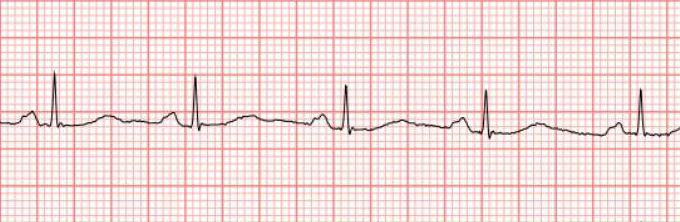 What Doctors Need To Know About Apple Watch EKG | The Hospital